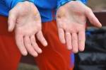 Jimmie Johnssons händer är lite trasiga efter förra veckans stakrace utan handskar i Åre